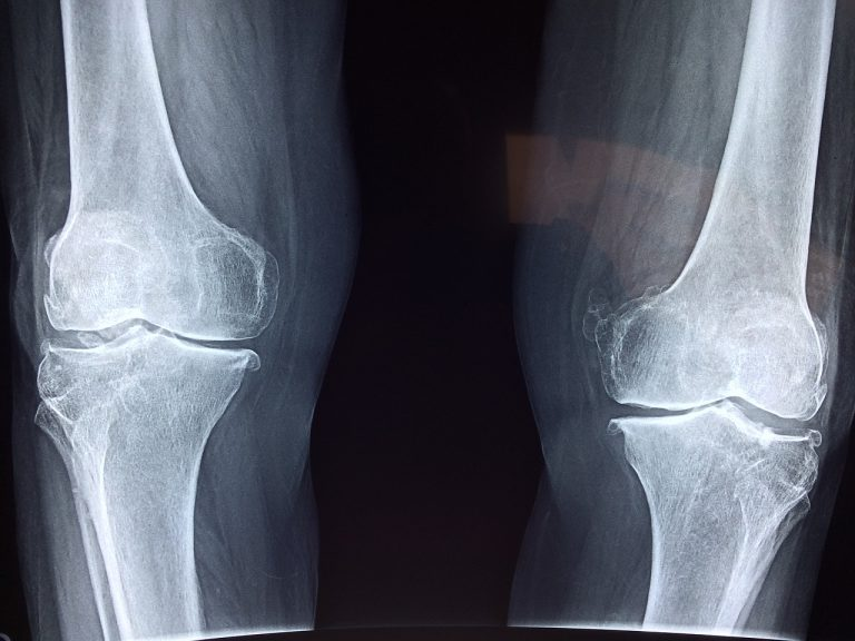 שבר ברגל